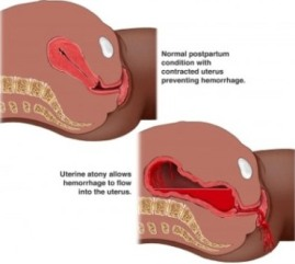Postpartum Hemorrhage – A Severe Condition That Leads To ...