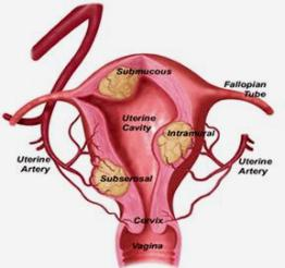 What do uterine fibroids look like ? Basically, fibroids are large ...
