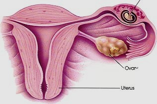 Ectopic Pregnancy Causes