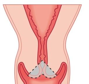Short Cervix during Pregnancy