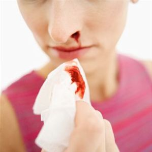 Nosebleeds During Pregnancy