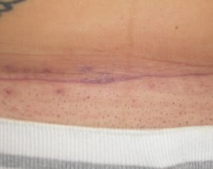 C Section Scar