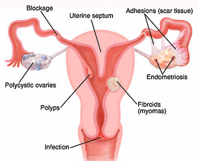 Anatomy of Uterus and Fallopian Tubes