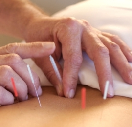 Benefits of Acupuncture and Fertility