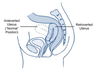 Retroverted Uterus - Symptoms and Treatment