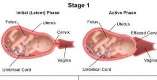 Stages of birth