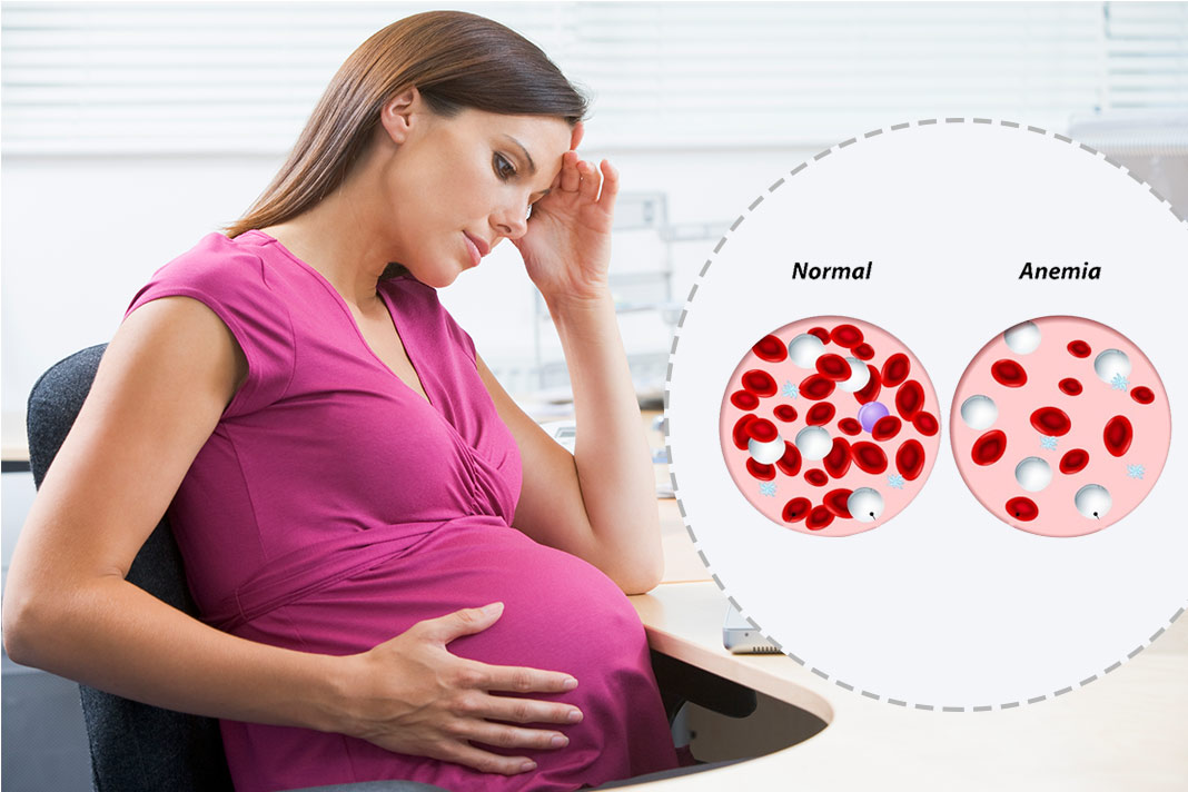 Anaemia during Pregnancy- Types, Causes and Symptoms