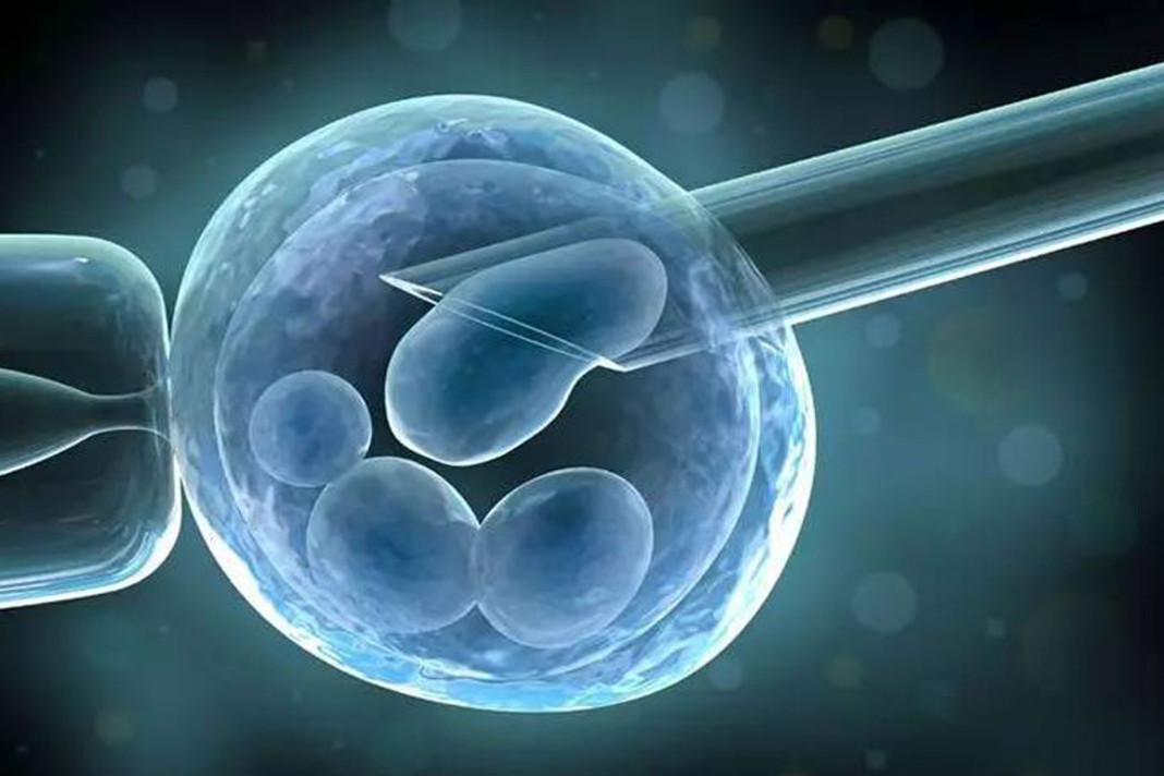 Top 5 Important Steps in IVF Process