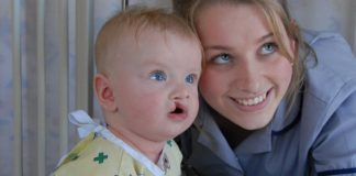 Everything you Should know about Cleft Lip and Palate