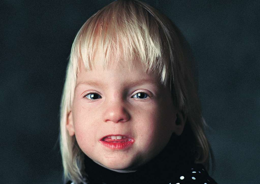 Fetal Alcohol Syndrome - Know What You Don't